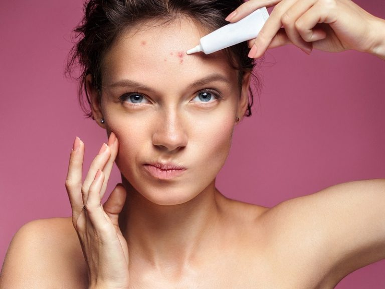 Eliminate Acne – The easiest method to Correctly Remove a Blackhead