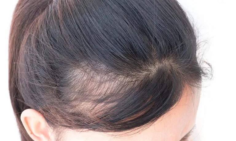 Which Shampoo Can Be Used for Hair Loss?