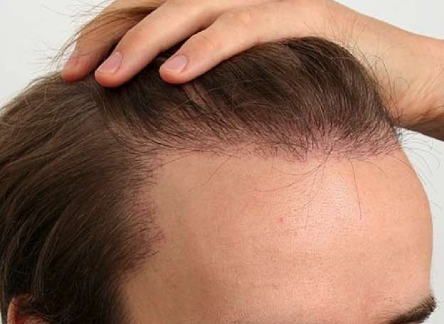 Minoxidil is a hair growth agent